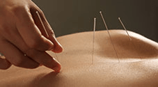 Myofascial dry needling resets tight muscles